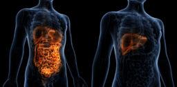 easl-fatty-liver-high-risk-cancer